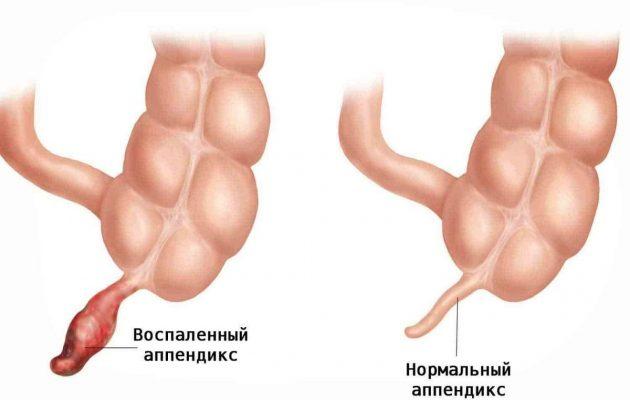 воспаленный аппендицит